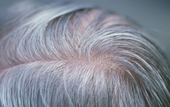 gen-yang-sebabkan-rambut-putih-ditemukan-218650-1
